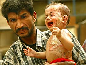 iraqburnedbaby.jpg